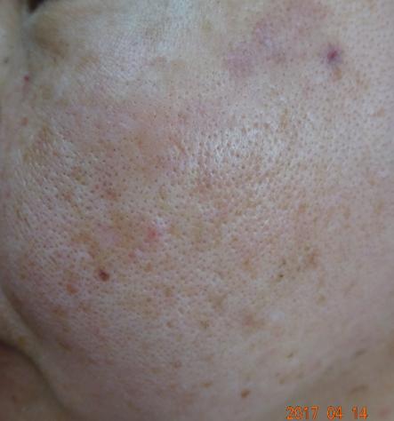 しみの治療7日後の写真