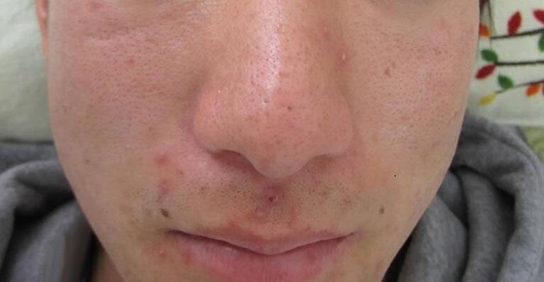 ニキビ治療前の写真